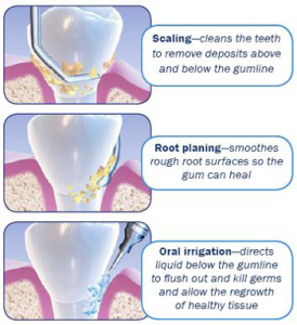 Gum treatments - Scaling and Planing