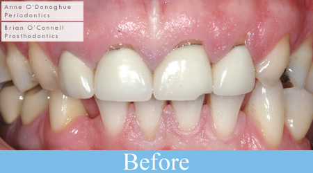 Clinical example: Crown lengthening