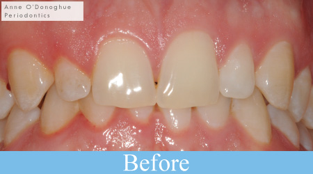 Clinical example - gum reshaping