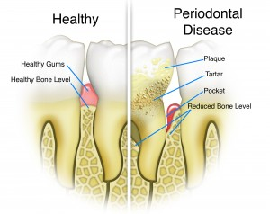 Gum disease treatments